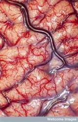 That's using your brain: Image wins photographyprize